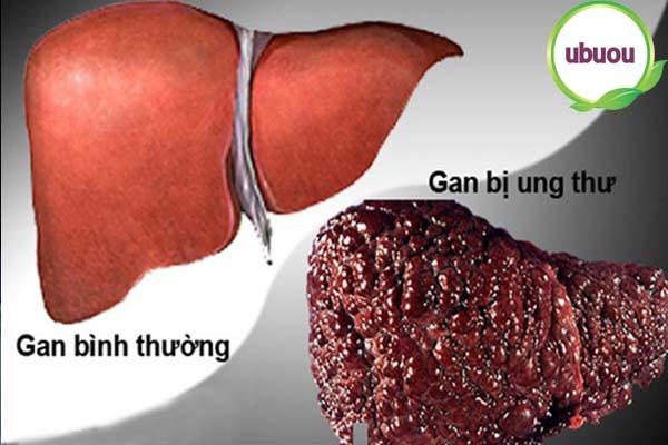 6 biến chứng nguy hiểm của bệnh xơ gan