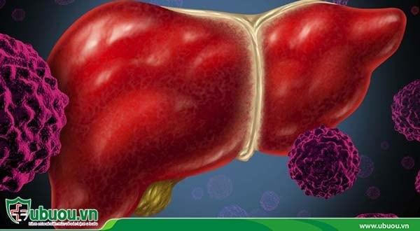 Ung thư gan di căn xuất phát từ các tế bào ung thư ở bộ phận khác của cơ thể