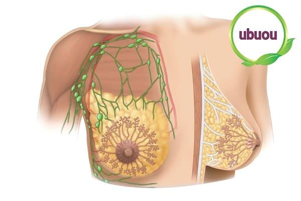 Ngứa vú, vú thay đổi kích thước bất thường là triệu chứng u xơ tuyến vú