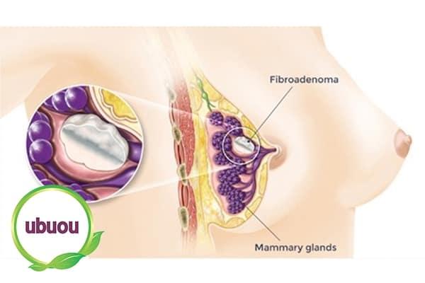 Triệu chứng u xơ tuyến vú biểu hiện rõ trong thời gian kinh nguyệt phụ nữ
