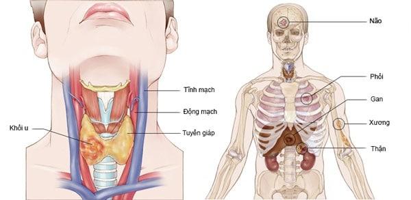 Các thể di căn của ung thư tuyến giáp giai đoạn đầu