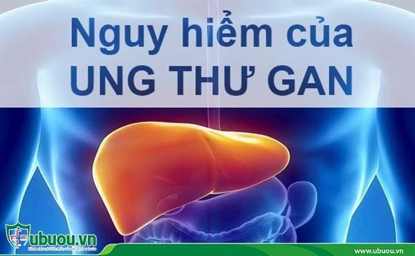 Ung thư gan ở giai đoạn 3 đã ở mức nguy hiểm