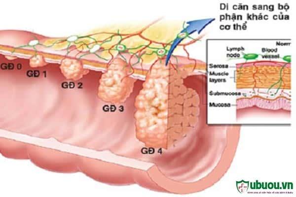 Cách điều trị ung thư vòm họng dựa vào từng giai đoạn