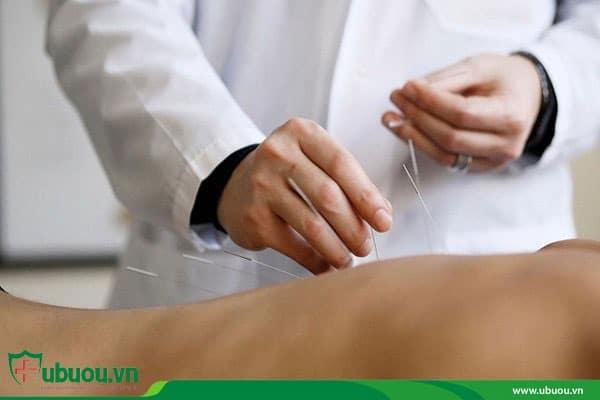 Châm cứu trị liệu hỗ trợ điều trị