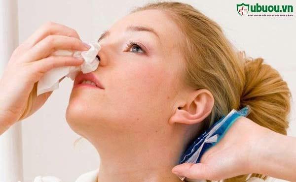 Chảy máu cam thường xuyên - Triệu chứng ung thư vòm họng
