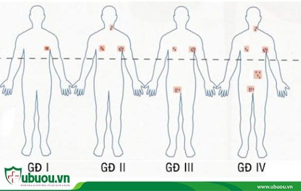 Chữa ung thư hạch bằng thuốc nam dựa trên từng giai đoạn