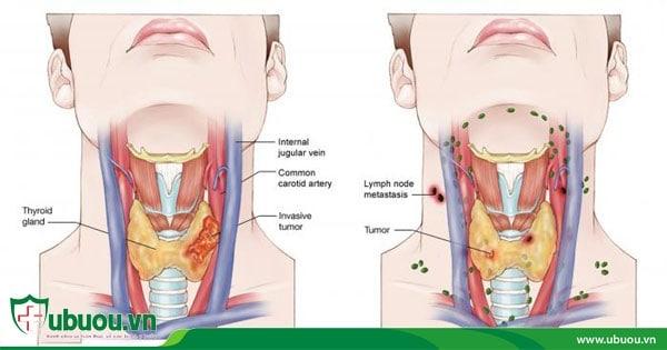 Dấu hiệu ung thư tuyến giáp di căn hạch cổ