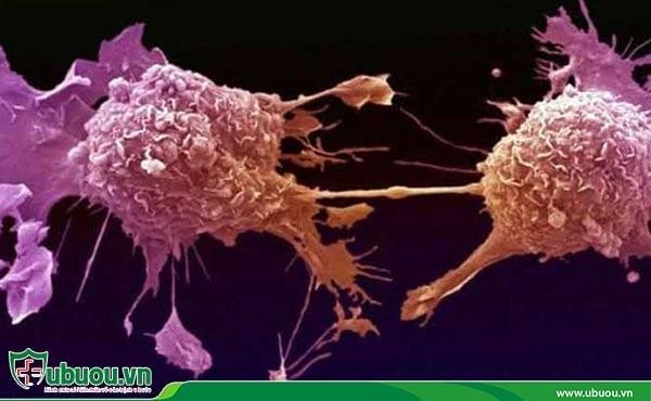 Phá hủy tế bào ung thư - Cách điều trị ung thư gan khi xuất hiện khối u nhỏ