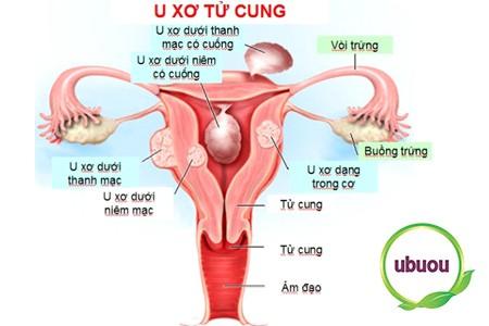 Khi phát hiện u xơ tử cung, bệnh nhân nên làm gì?