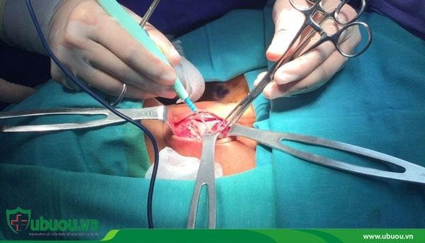 Phương pháp phẫu thuật tuyến giáp