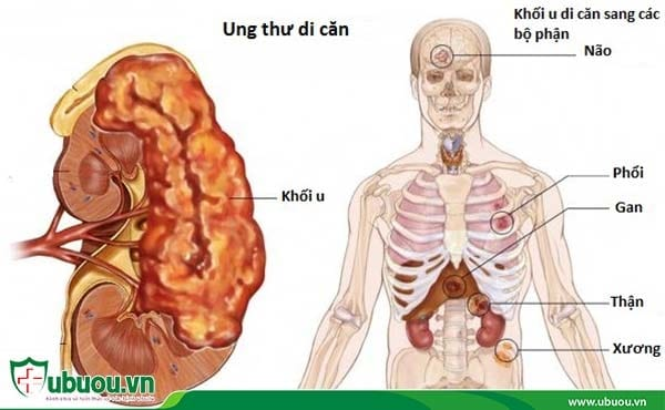 Ung thư gan di căn là gì? Cách chữa ung thư gan di căn.