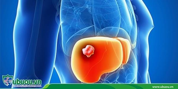 Ung thư gan giai đoạn 2 khối u bắt đầu xâm lấn đến các mô xung quanh