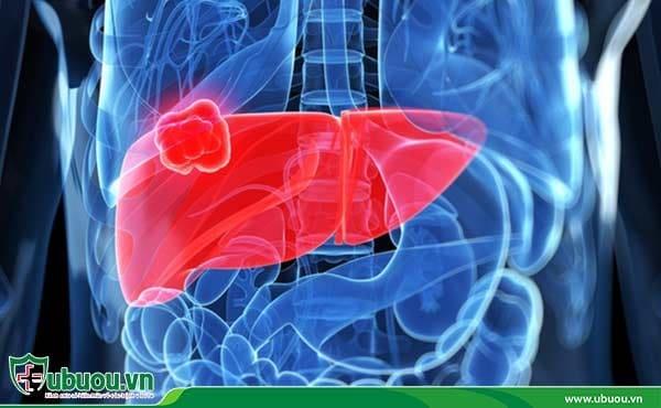 Ung thư gan là tình trạng tế bào ung thư ác tính phát triển trong gan