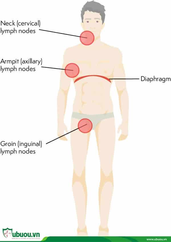 Ung thư hạch bạch huyết giai đoạn 3