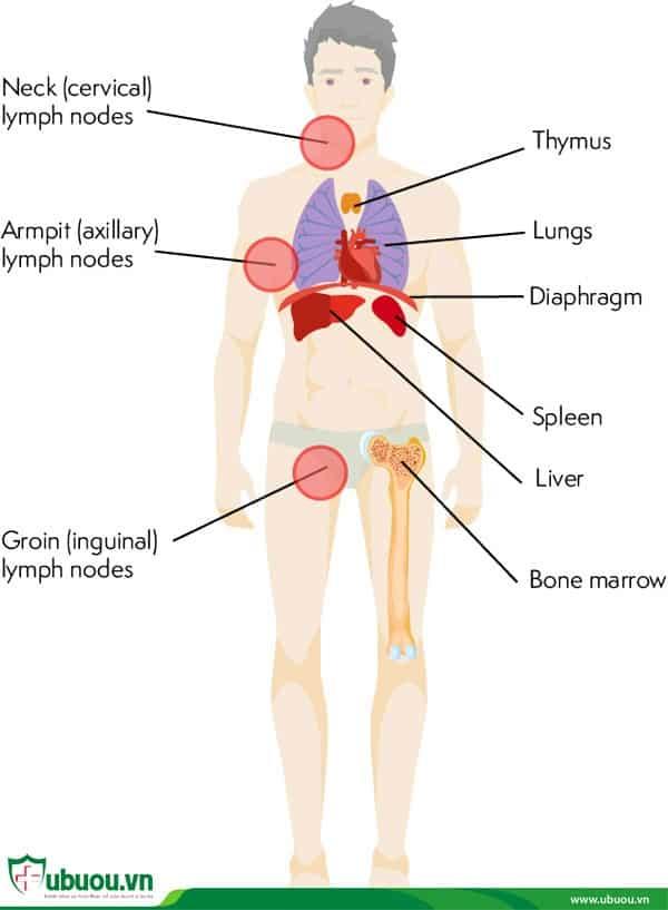 Ung thư hạch bạch huyết giai đoạn 4