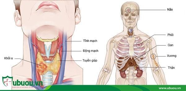 Ung thư tuyến giáp các giai đoạn