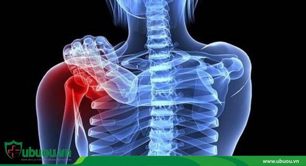 Ung thư tuyến giáp di căn gây đau ở các bộ phận
