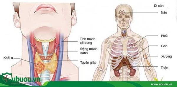 Ung thư tuyến giáp di căn các giai đoạn
