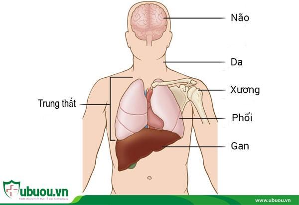 Ung thư tuyến giáp di căn xa