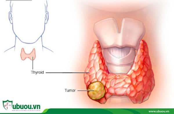 Ung thư tuyến giáp thể không biệt hóa