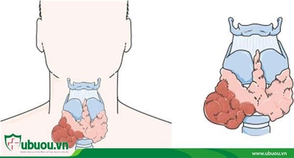Ung thư tuyến giáp thể nang