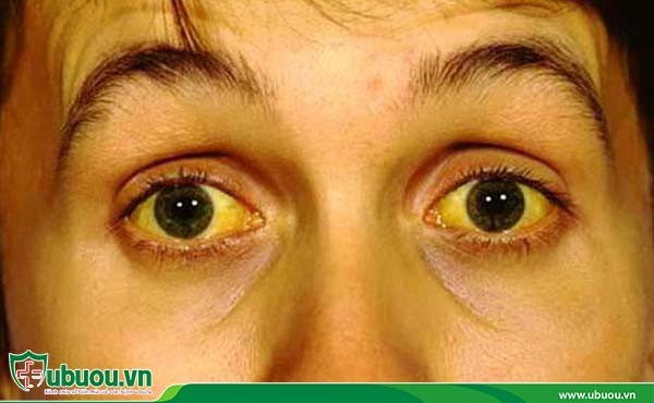 Vàng da, vàng tròng trắng của mắt do lúc này chức năng gan và ống mật suy giảm