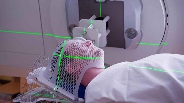 Xạ trị điều trị ung thư giai đoạn cuối