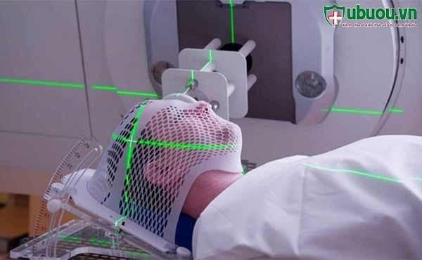 Xạ trị - Phương pháp điều trị ung thư vòm họng phổ biến