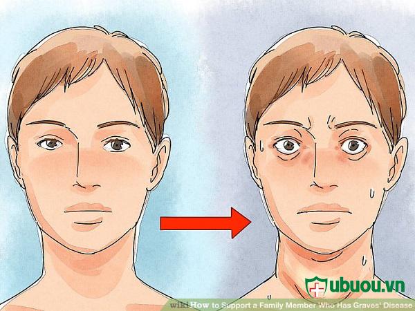 biểu hiện bệnh u xo tuyến giáp