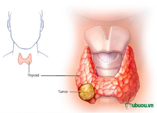 Dấu hiệu của bệnh K tuyến giáp