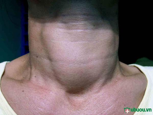 Dấu hiệu của bệnh K tuyến giáp là cổ họng sưng to