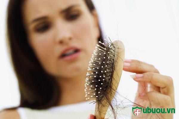 rụng tóc sau khi điều trị bênh nhân xơ tuyên giáp