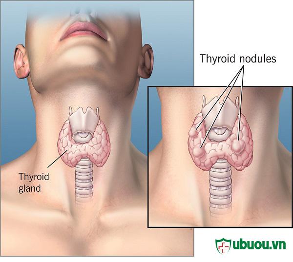Chia sẻ thông tin quan trọng về căn bệnh u tuyến giáp