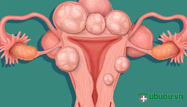 U xơ chèn ép tử cung làm cho phụ nữ khó mang thai