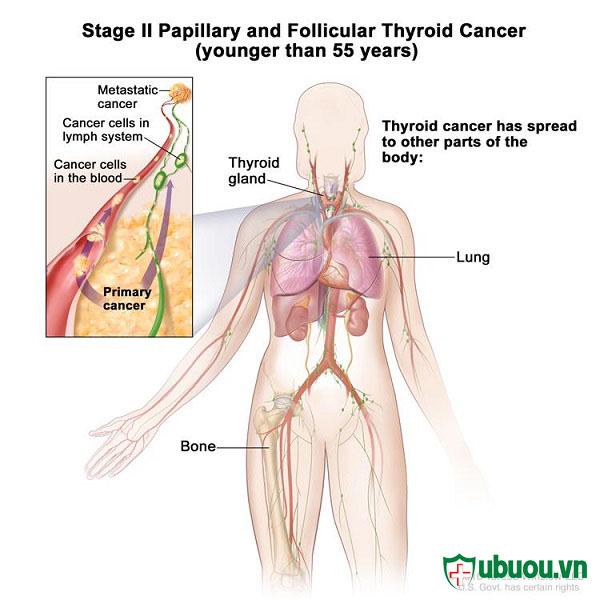 giai đoạn 5 của ung thư tuyến giáp