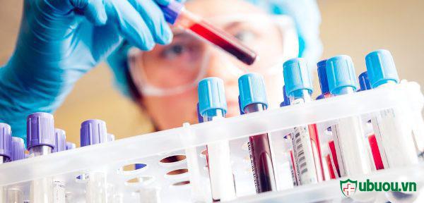 Xét nghiệm máu để xác định u xơ tử cung