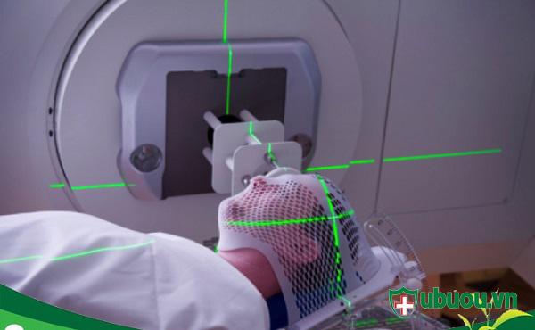 phác đồ chiệu xạ trị ung thư tuyến giáp