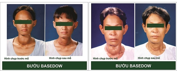 7 thông tin quan trọng về bệnh Basedow và cách điều trị