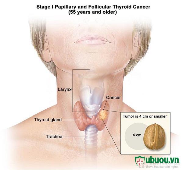 Giai đoạn 1 ung thư tuyến giáp