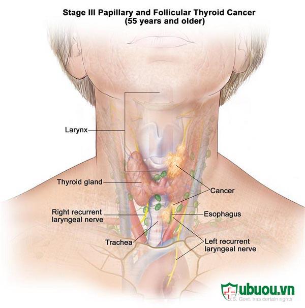 Giai đoạn 3 ung thư tuyến giáp