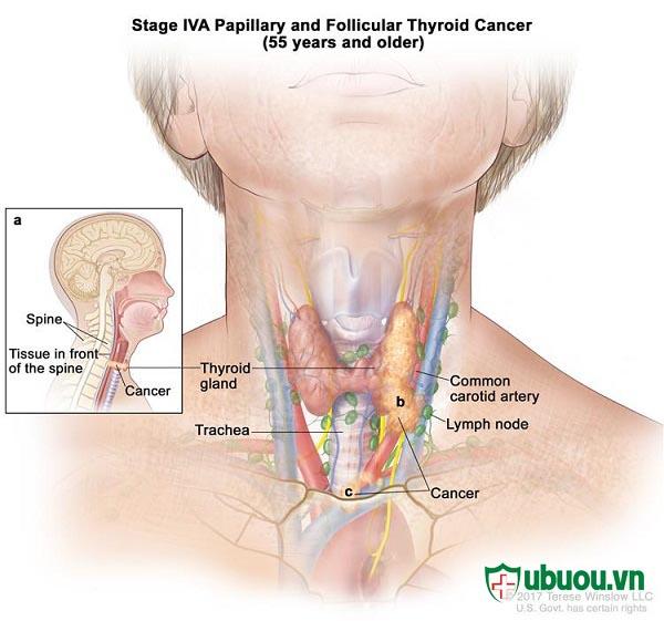 Giai đoạn 4 ung thư tuyến giáp