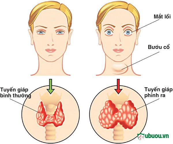4 cách chữa bệnh basedow hiệu quả mà người bệnh cần biết