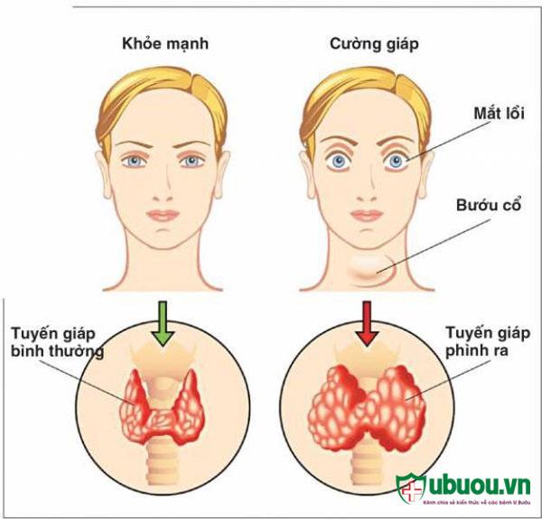 Triệu chứng của bệnh basedow