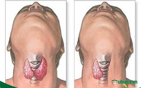 Phẫu thuật cắt một bên tuyến giáp để chữa ung thư tuyến giáp