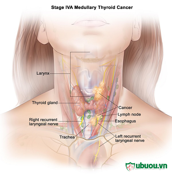 Ung thư tuyến giáp thể không biệt hóa dễ di căn sang các bộ phận khác