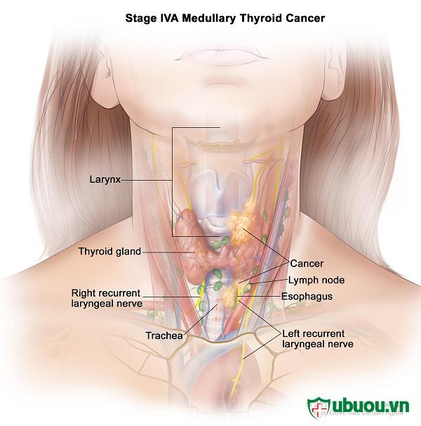 Các loại ung thư tuyến giáp thì ung thư tuyến giáp thể tủy là nguy hiểm nhất