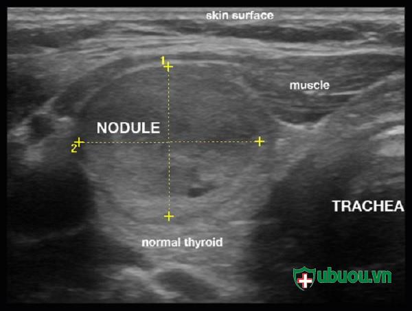 hình ảnh chụp siêu âm khối u tuyến giáp
