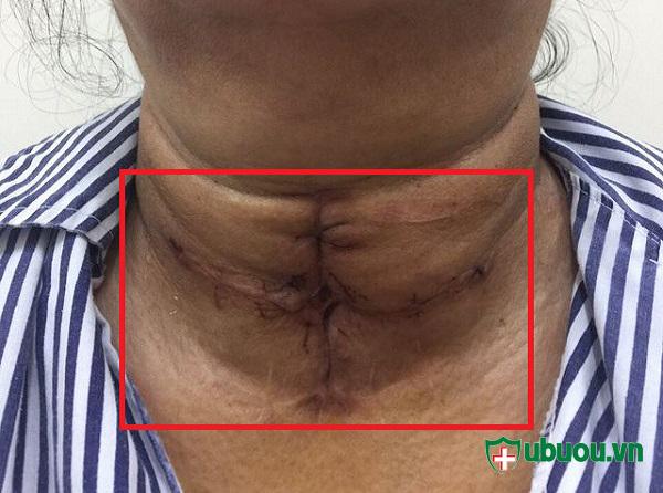 Vết mổ u tuyến giáp sau khi phẫu thuật thành công