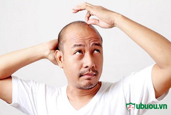 Hói đầu mà một trong các dấu hiệu của bệnh u tuyến giáp ở Nam Giới