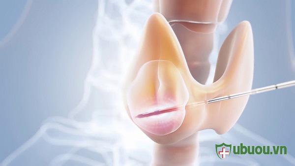 Sinh thiết u tuyến giáp – 5 điều có thể bạn chưa biết